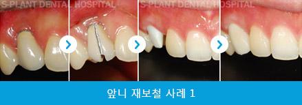 splant-front-teeth-039