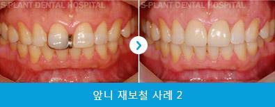 splant-front-teeth-040