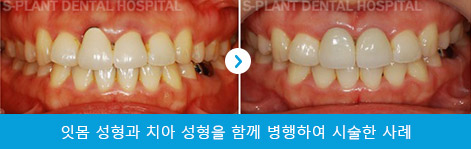 splant-surgery-041